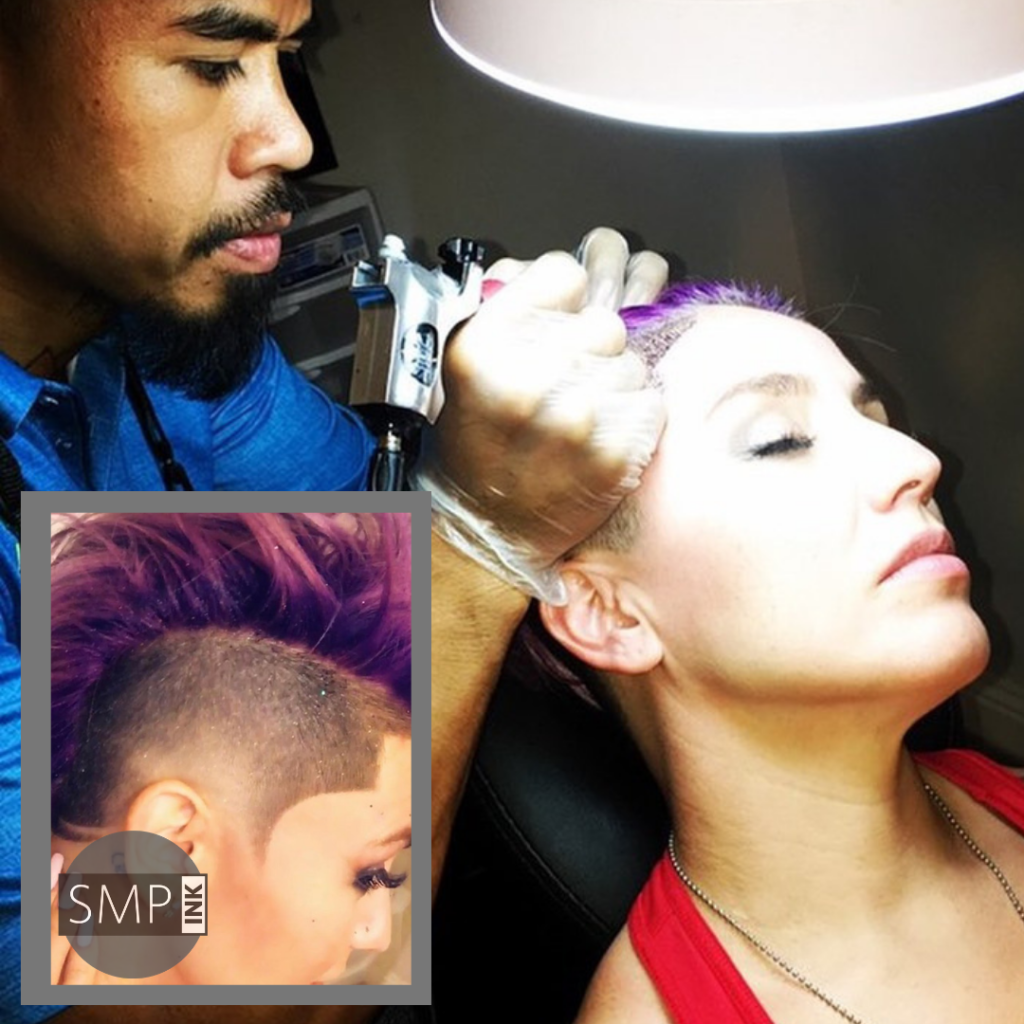Getting scalp micropigmentation as a hair loss treatment for women