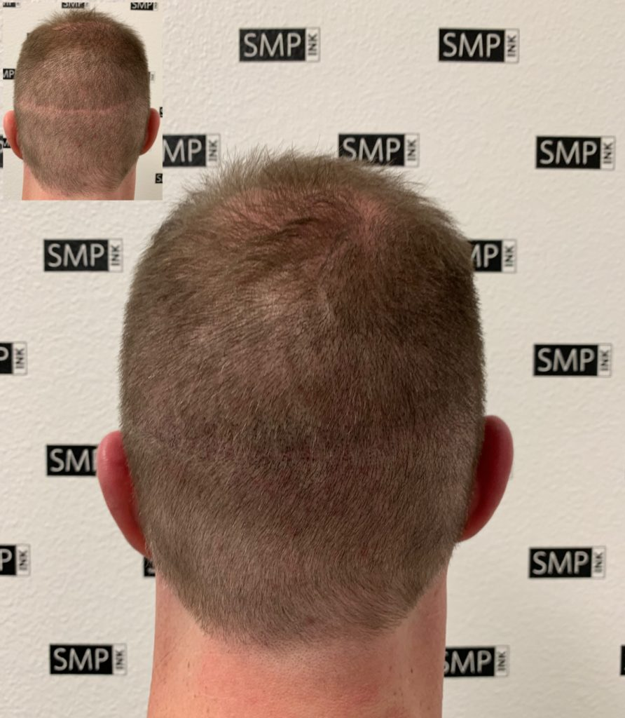 Scalp Micropigmentation Scar Camouflage - SMP INK