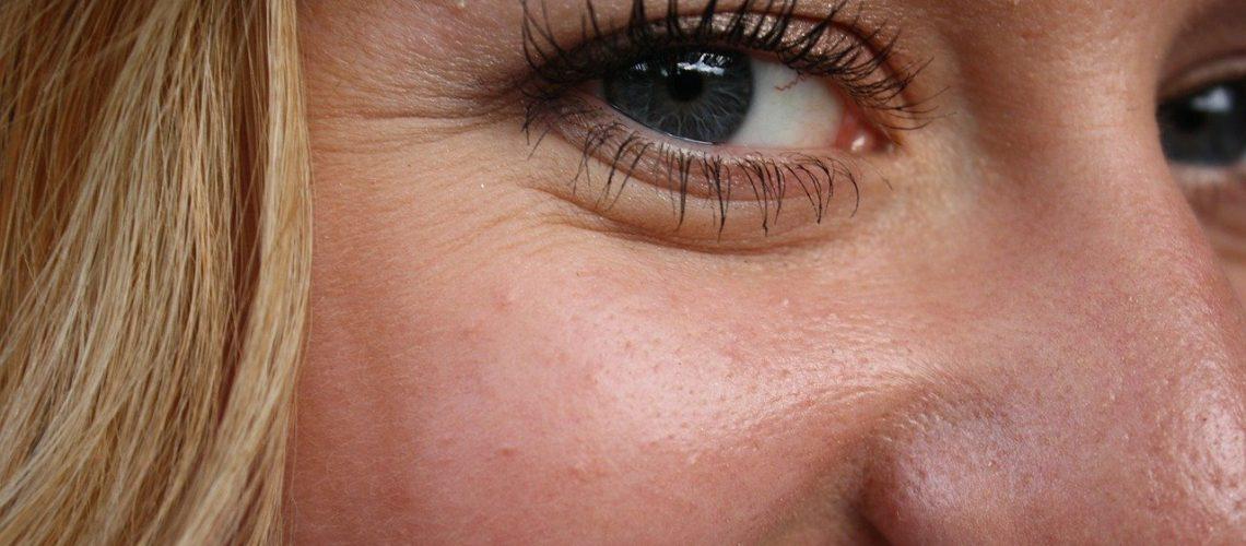 Fibroblast Eyewrinkles